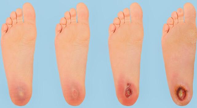 Diyabetik ayak, diyabet hastalığının en çok korkulan tehlikelerinden biridir