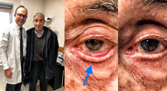 """Op.Dr.Seçkin Meriçeli """"Göz kapağı sarkmasına dikkat"""""""